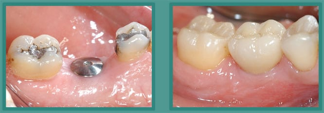 Dental Implants Earlington