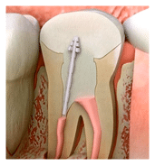 Dental Implants dentist Silverdale