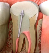 root canal dentist New Britain