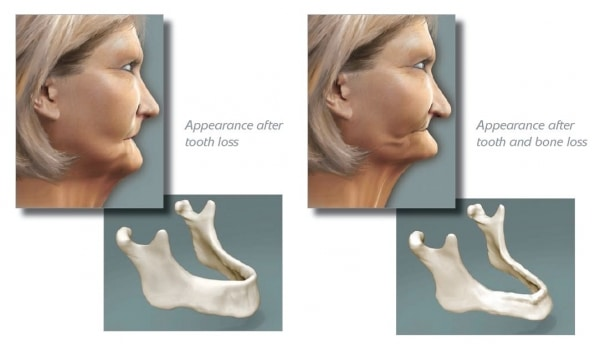 dental implants doylestown