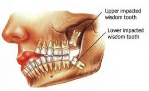 How Wisdom Teeth Got Their Name chalfont