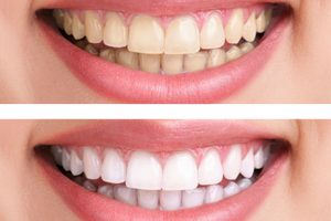3 Effective Natural Teeth Whitening Solutions in Chalfont
