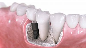 Dental Implants – Are They For Me?